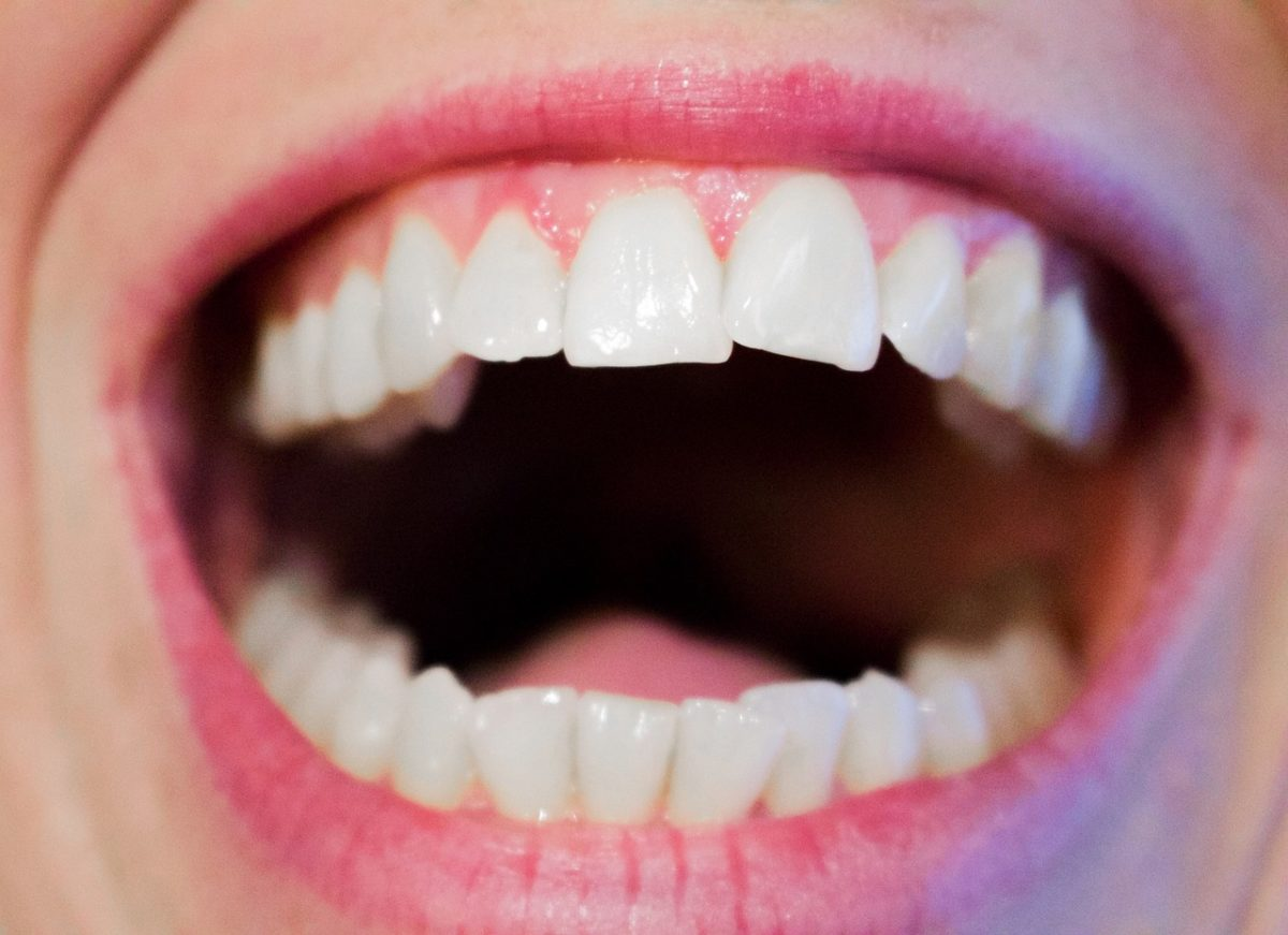 Dzisiejsza technologia używana w salonach stomatologii estetycznej zdoła spowodować, że odbierzemy prześliczny uśmieszek.